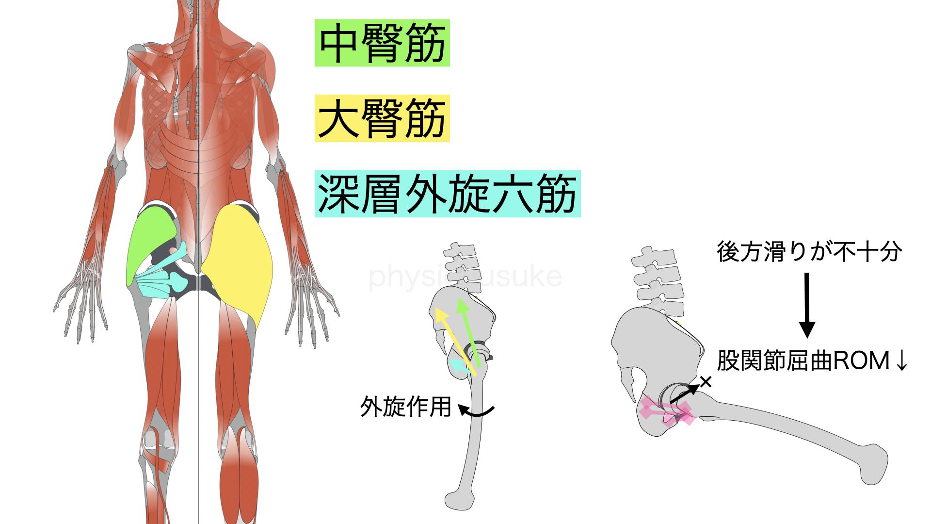 腰痛体操、股関節、運動、深層外旋六筋、後方滑り