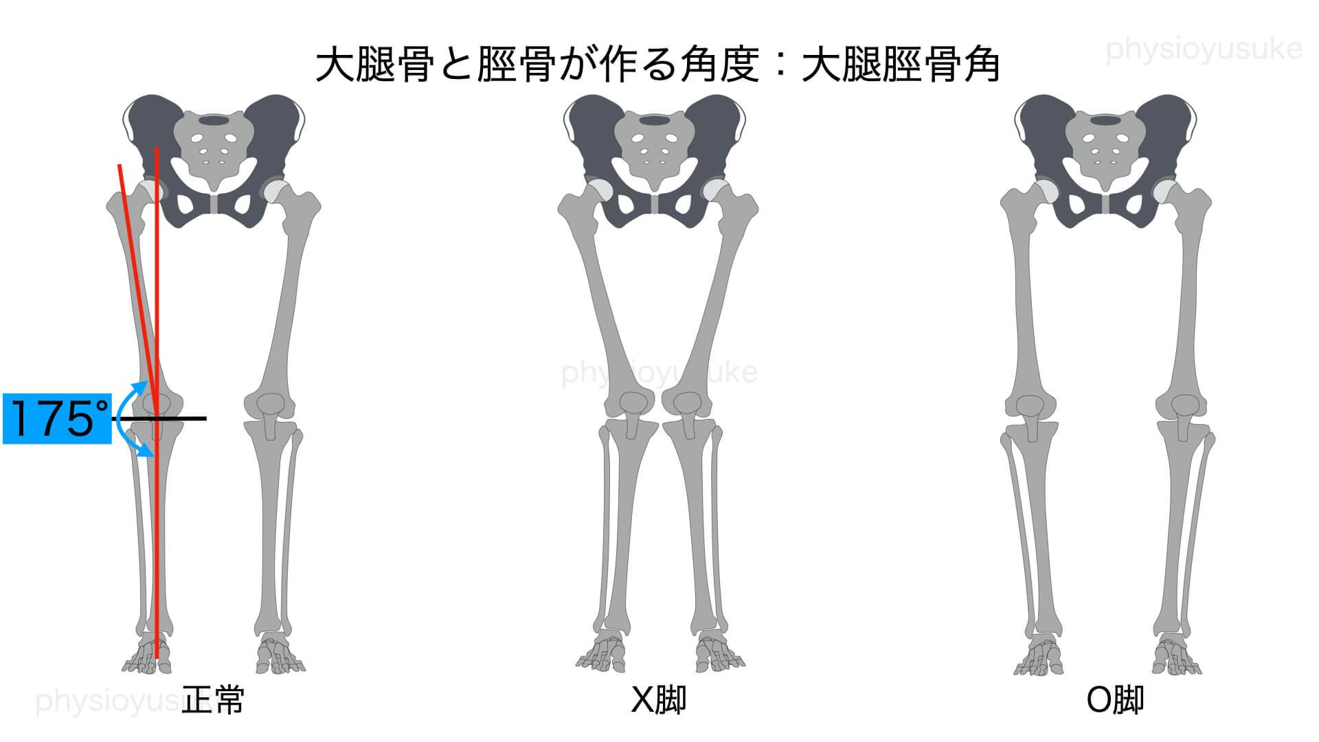 O脚種類、X脚