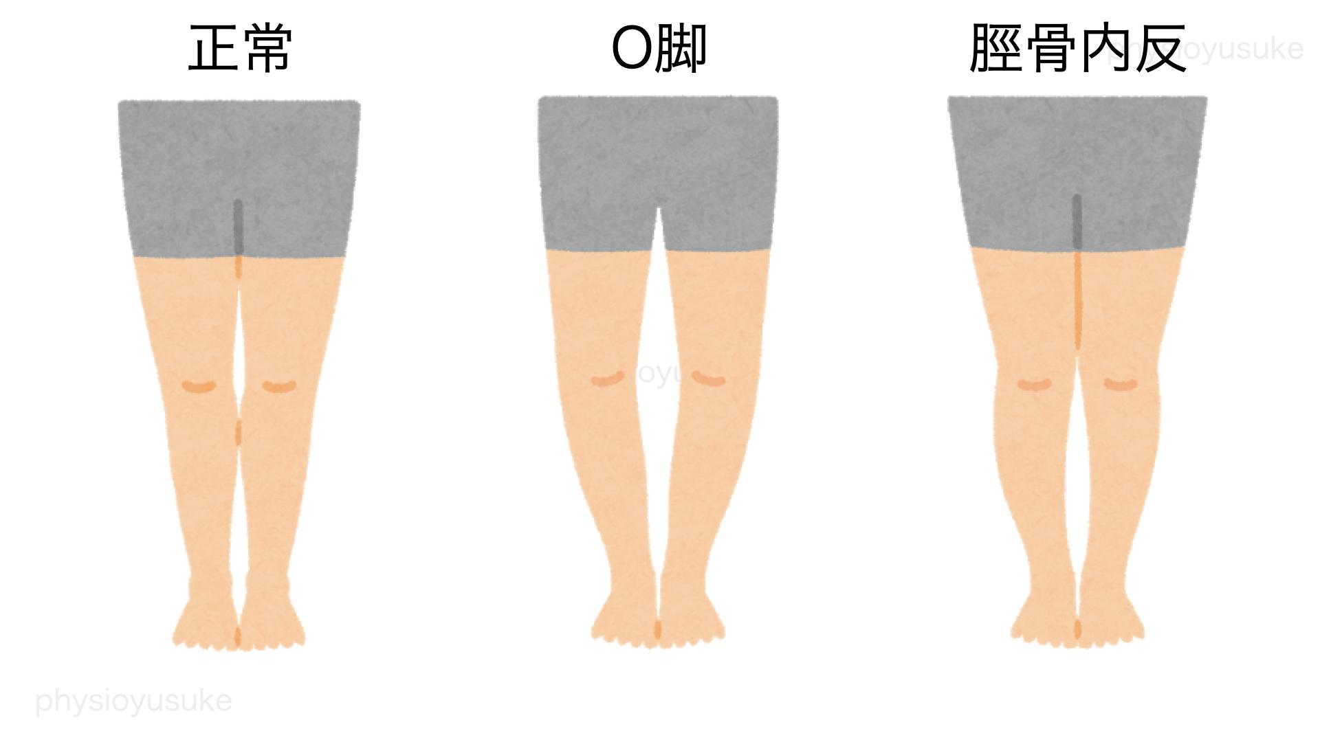 O脚、正常、脛骨内反
