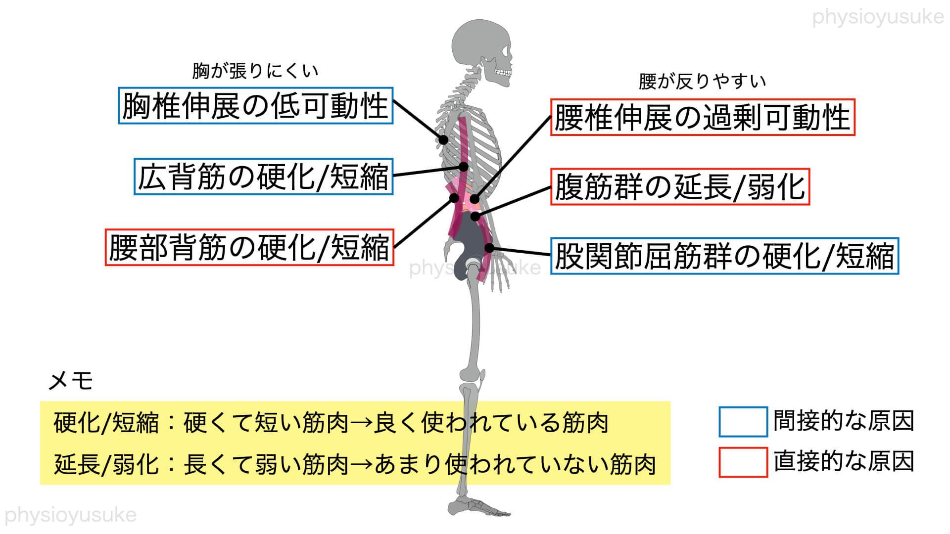 伸展型腰痛原因