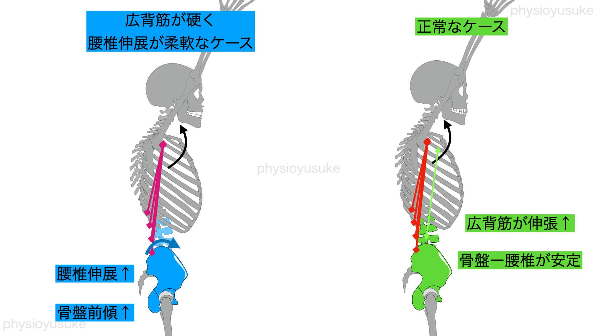 伸展型腰痛、広背筋