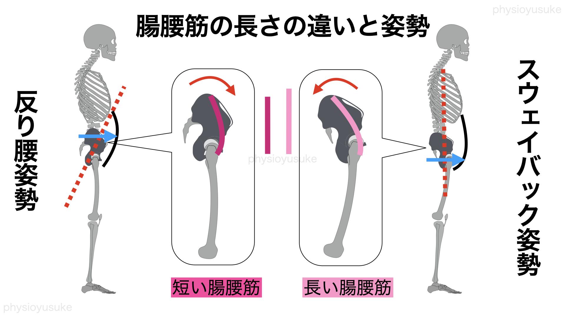 反り腰、スウェイバック姿勢、腸腰筋