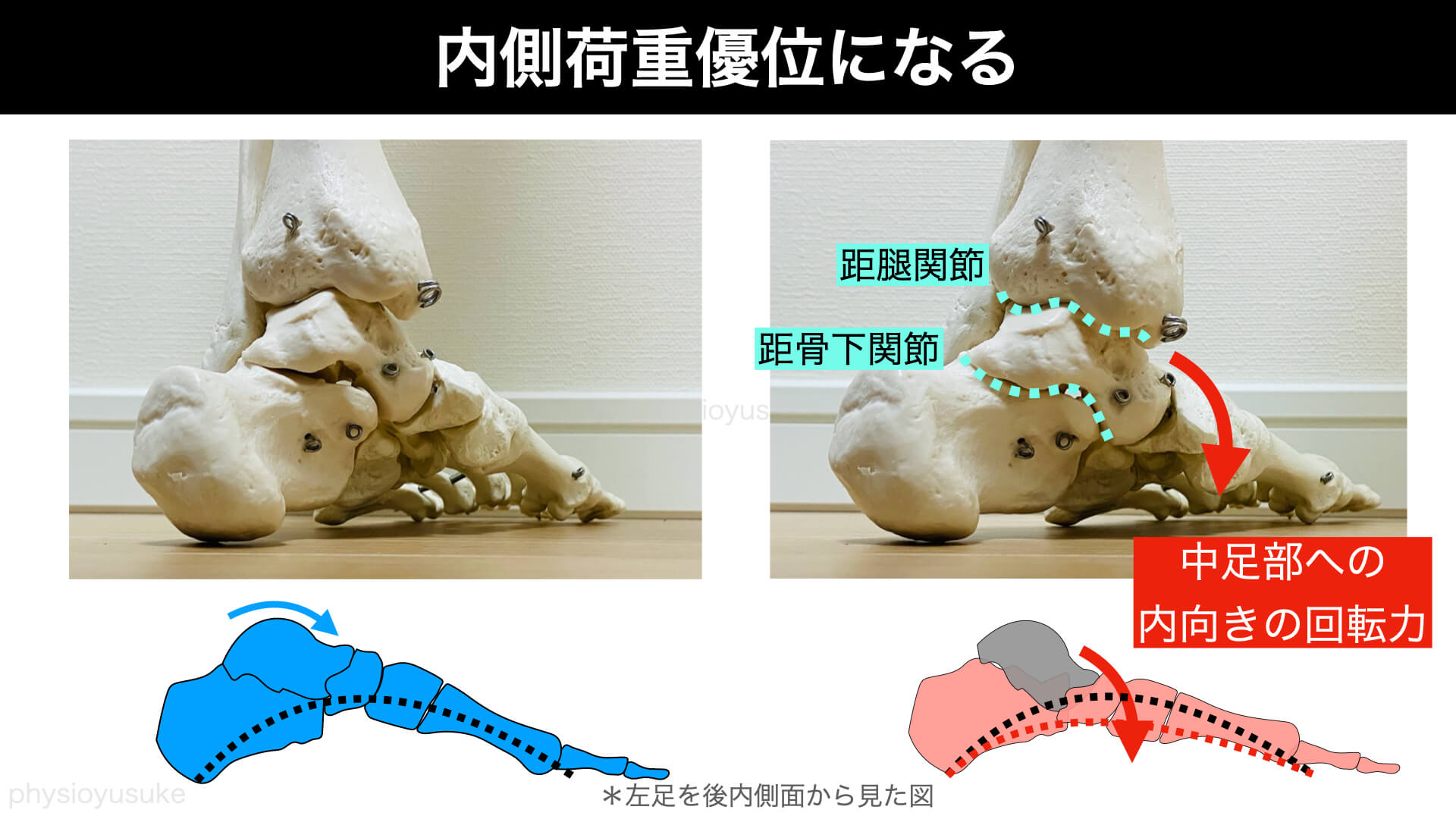 足部、内側荷重、踏み圧